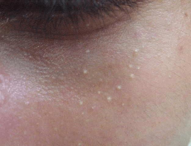 Так выглядят жировики (просянка) в области вокруг глаз