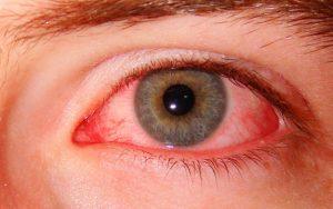Если у вас появились побочные эффекты при использовании препарата, тогда следует немедленно прекратить эго использование