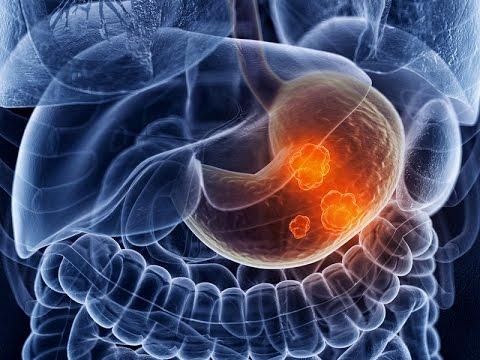Как и при многих других видах рака, исход лечения рака желудка зависит от его распространенности на момент постановки диагноза