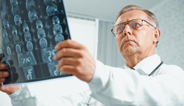Первичные опухоли головного мозга начинают развиваться, когда нормальные клетки сталкиваются с ошибками (мутациями) в ДНК