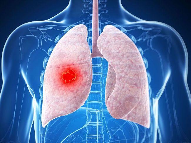 Бронхоскопия позволяет диагностировать злокачественные новообразования в дыхательных путях