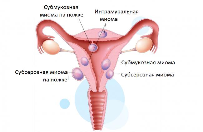 Причиной месячных со сгустками крови может стать миома матки