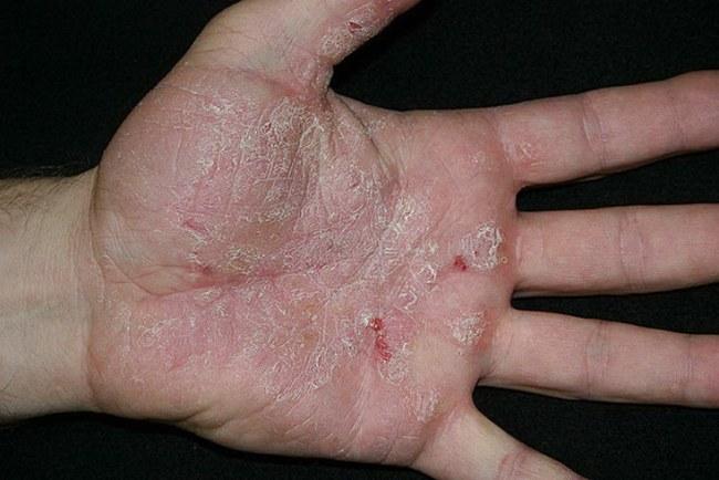 Псориаз на руках проявляется сначала небольшими пятнами, затем пятна покрываются чешуйками
