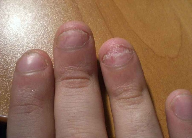 Для лечения псориаза ногтей успешно применяется яичное и кокосовое масло