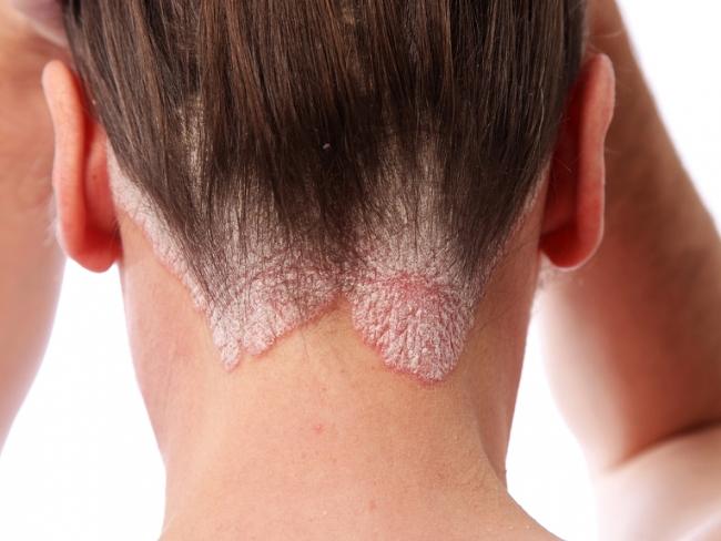 Псориаз - кожное заболевание хронического типа, проявляется высыпаниями и шелушениями на коже