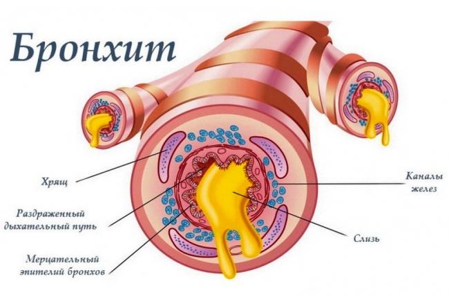 Бронхит - воспалительный процесс в бронхах, чаще всего заболевание возникает при проникновении инфекции из верхних дыхательных путей