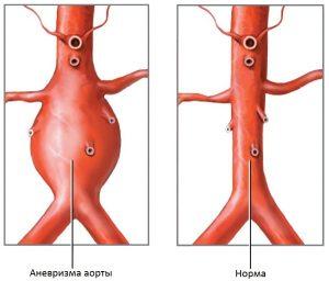 Аневризма аорты - это патологическое расширение стенки аорты в брюшном отделе