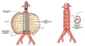 Эндопротез надежно устанавливается и фиксируется на поврежденный участок