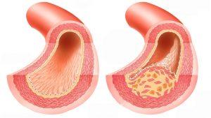 Атеросклероз провоцируется накоплением холестерина в крови
