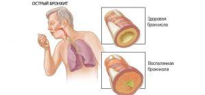 Активное продолжение болезни характеризируется воспалительным процессом