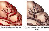 Деменция (приобретенное слабоумие)