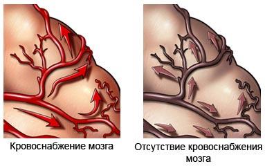 Причины и симптомы деменции. Как лечить деменцию фото