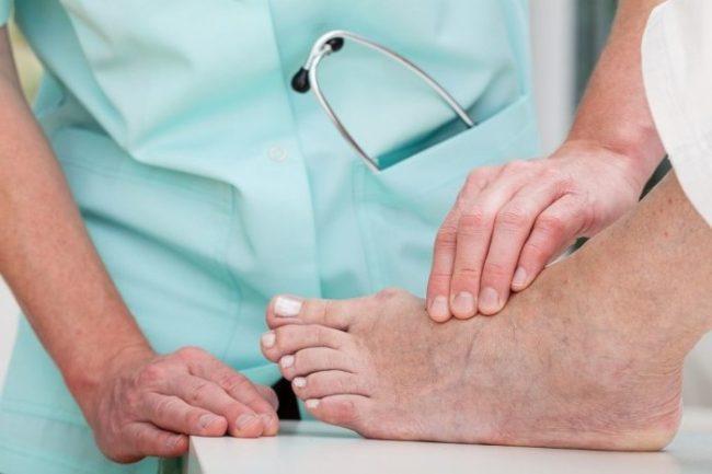 Медикаментозное (консервативное) лечение диабетической стопы назначается на ранних стадиях осложнения, на более поздних, к нему могут присоединяться уже операционные меры