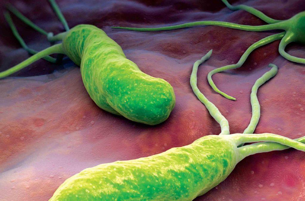 Как и чем лечить бактерии желудка хеликобактер