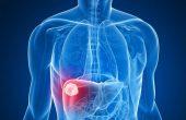 Что такое гемангиома печени? Симптомы, причины и методы лечения