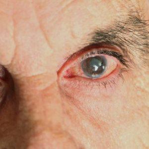 Так выглядит глаз с глаукомой