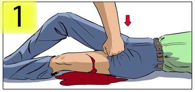 Первым делом при повреждении бедренной артерии необходимо сильно прижать бедро выше раны