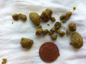 Обнаружение камней в желчном пузыре