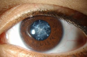 Очень важно не запускать катаракту, так как она влечет за собой серьезные осложнения