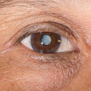 Метод лечения зависит от того, на что конкретно оно направлено: на остановку прогрессии болезни или на полное восстановление зрения