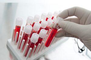 Для диагностики необходимо сдать анализ крови