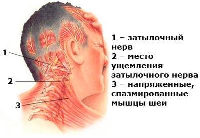 Затылочная невралгия является частой причиной головной боли