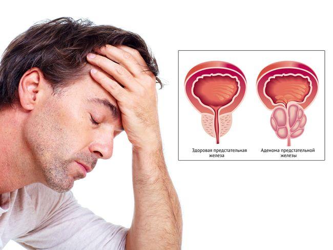 Аденома простаты - довольно частое заболевание у мужчин старше 45 лет