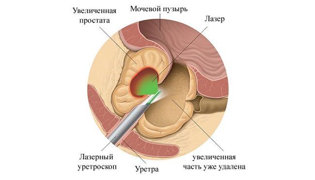 Предстательная железа рак брахитерапия отзывы
