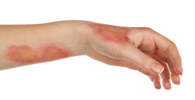 В случае воздействия на кожу радиации, Актовегин применяется в профилактических целях