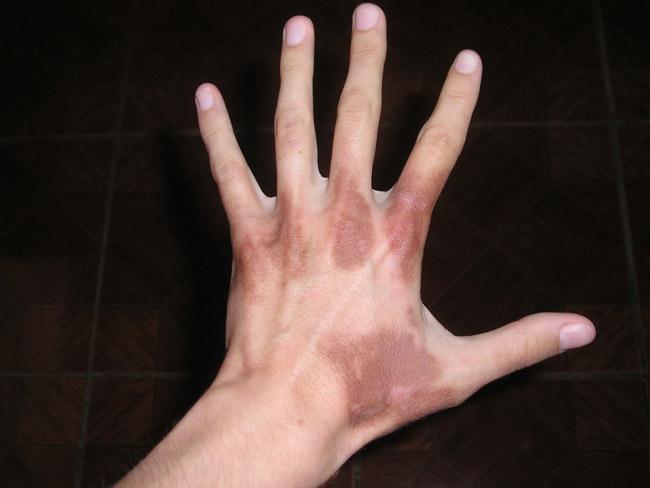При нарушении обмена порфириновых соединений, после взаимодействия ультрафиолета с кожей, он вызывает аллергическую реакцию