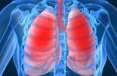 Идиопатический фиброзирующий альвеолит легких — можно ли вылечить заболевание?