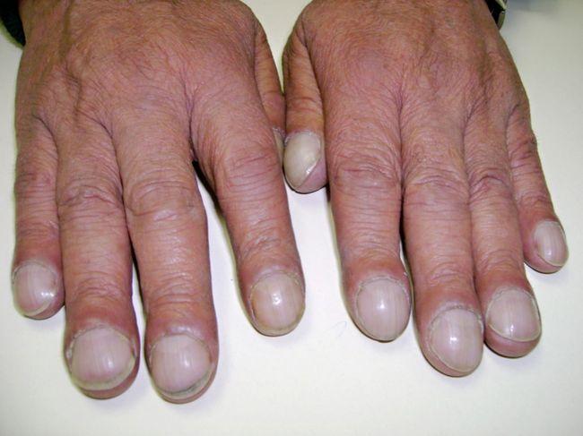 Утолщение фаланг пальцев и изменением формы ногтей в виде часовых стекол - один из симптомов заболевания