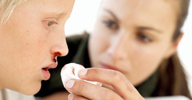 Для детей Аминокапроновая кислота применяется только когда имеется склонность к носовым кровотечениям и патологиям, сопровождаемым повышенной ломкостью капилляров