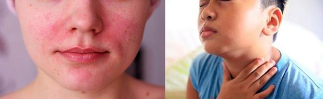 При приеме Амоксициллина возможны побочные эффекты в виде аллергических реакций: гиперемия кожи, крапивница, отеки ангионевротического характера, ринит, конъюнктивит, дерматиты, синдром Стивенса-Джонсона