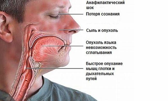 Анафилактический шок - это очень опасная аллергическая реакция, которая угрожает жизни человека.