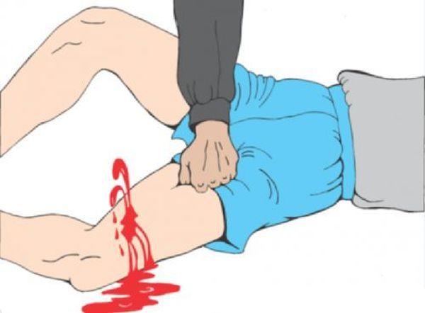 При любом кровотечение главное правило - быстро оказать первую помощь и постараться остановить его