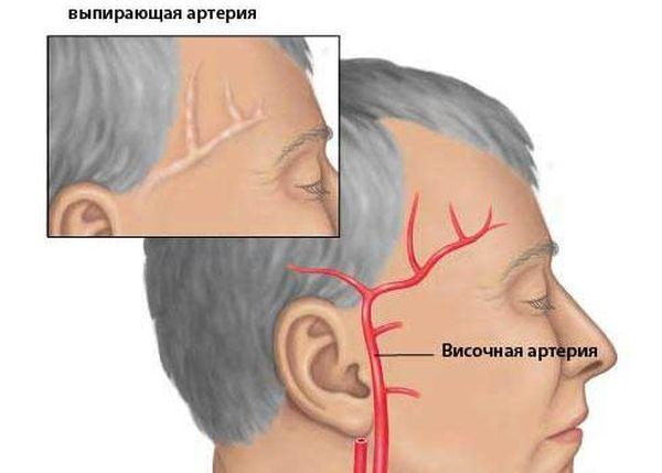 Височная артерия