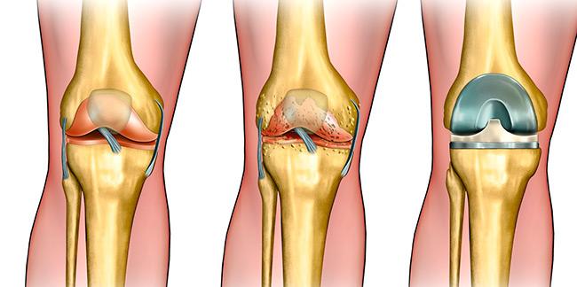 Первая степень артроза характеризуется несильными болями при длительном нахождении ноги в одном положении, которые после отдыха проходят