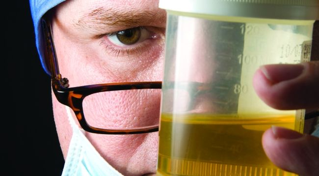 Специалисты диагностируют инфекционно-воспалительный процесс в организме, если анализы при повторной сдаче показали наличие бактерий в моче.