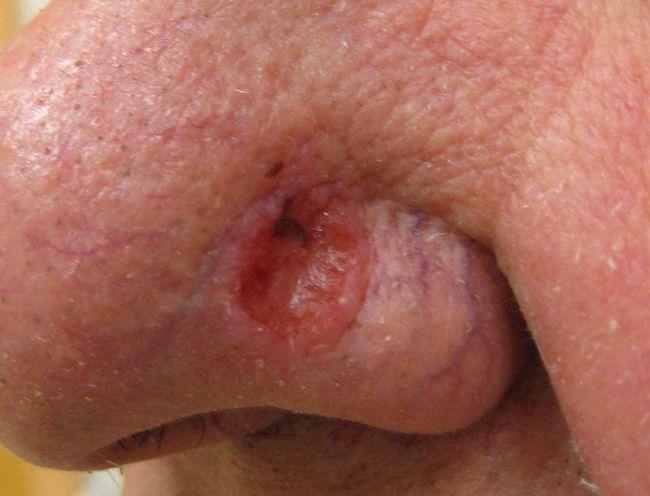 Базалиома на носу
