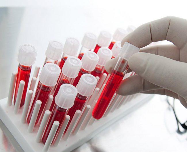 Базофилы — это клетки крови, которые как и эозинофилы и нейтрофилы, происходят из гранулоцитарного ростка кроветворения