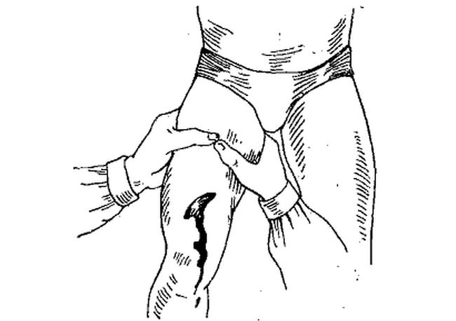 При сжатии ноги выше поврежденного участка бедренной артерии можно замедлить кровотечении до приезда скорой помощи