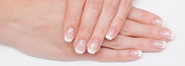 Хаотичные белые пятнышки на ногтях чаще всего возникают из-за сезонного гиповитаминоза