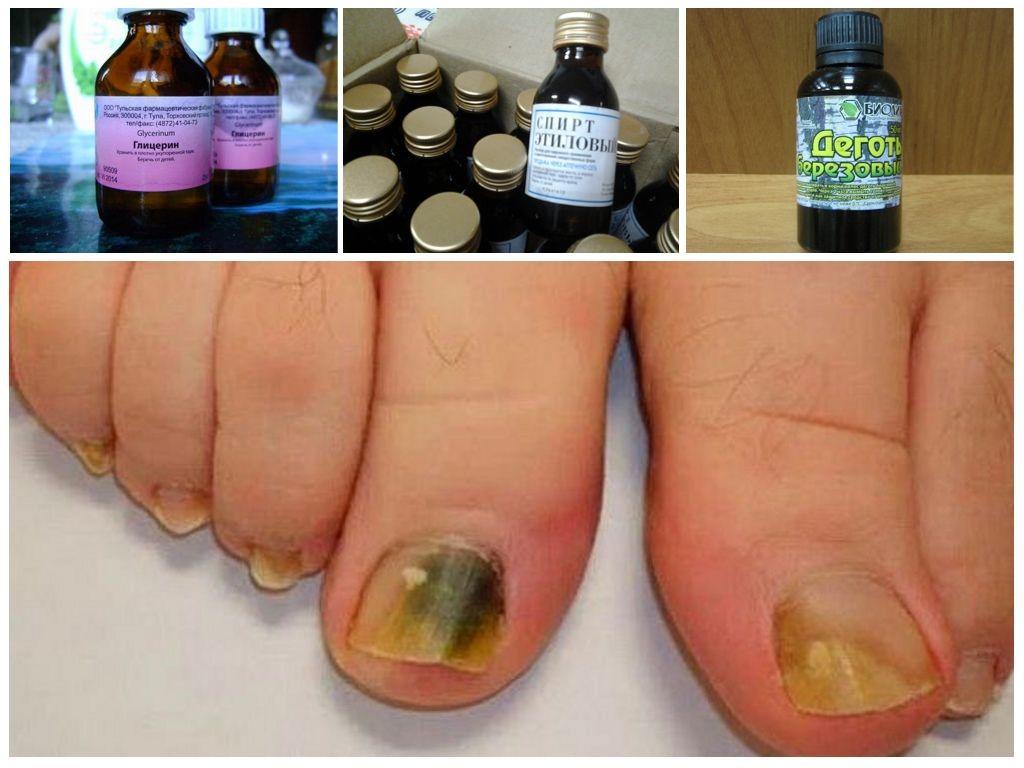 Грибок ногтей лечение народными средствами йод