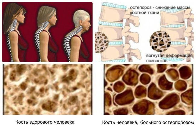 При остеопорозе снижается масса костной ткани