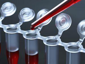 Обычно анализ назначается лечащим врачом, чтобы определить как общее состояние организма, так и состояние отдельных органов