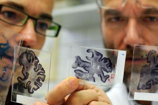Ученые продолжают активно работать в направлении поиска способов лечения заболевания