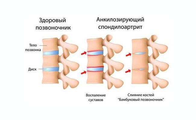 Болезнь Бехтерева поражает осевой скелет и крестец
