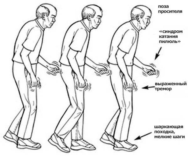 Болезнью Паркинсона начинает максимально проявляться и быть заметной с 3-й стадии