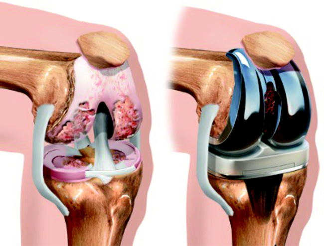 Коленный сустав до операции, слева, и после операции протезирования сустава, справа